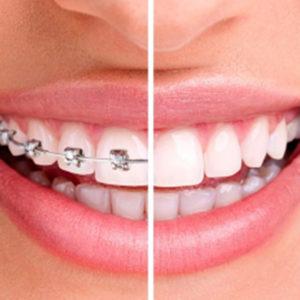 Ortodonzia Studio Eccher